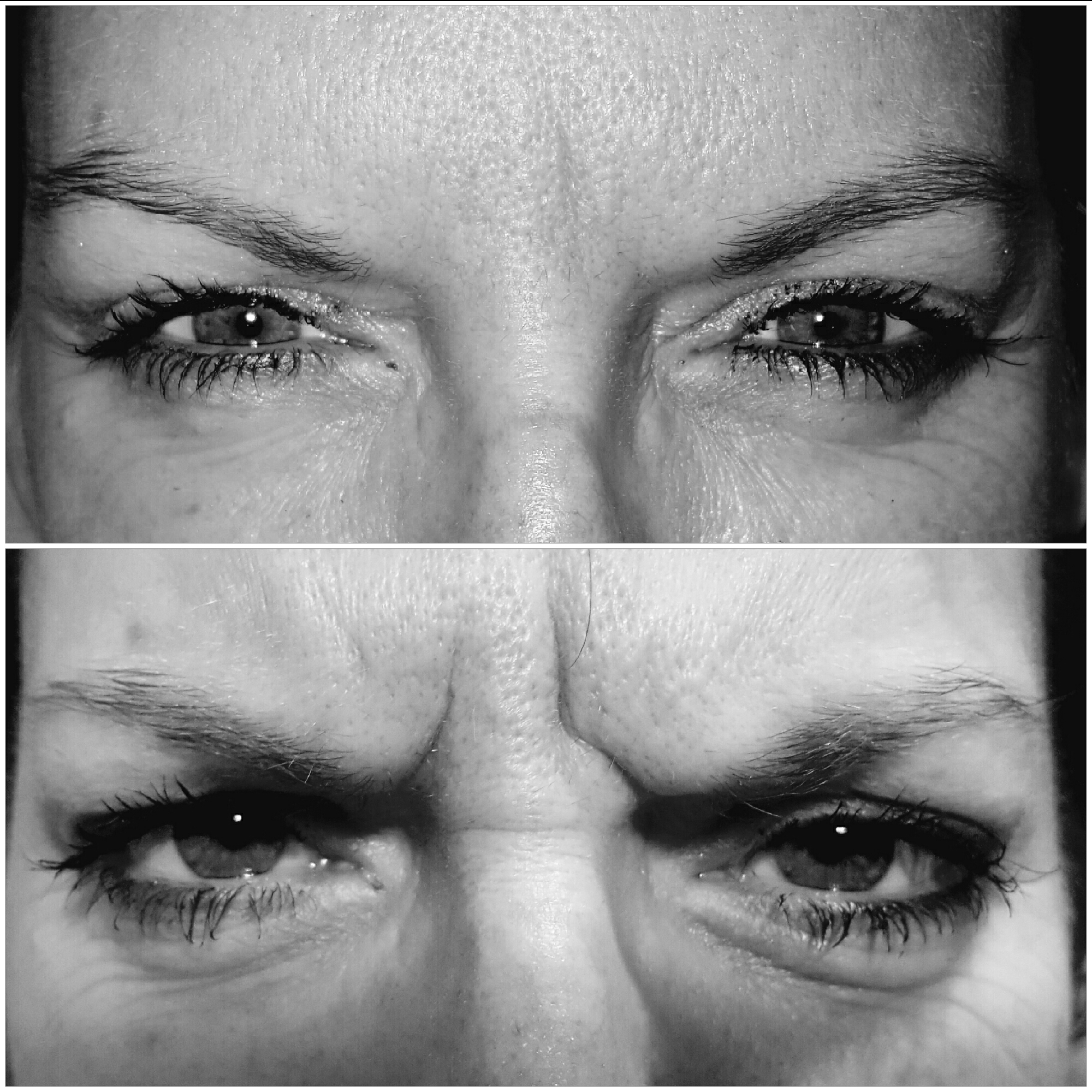 Glabellar frown lines!! Smile...our Botox treatment can help restore your youthful appearance!