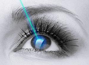 Custom All Laser Lasik